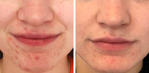 ACNE REDUCTION patient before and after photo