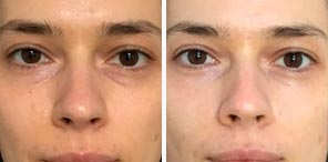 DARK CIRCLES patient before after photo