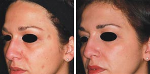BENIGN PIGMENTED LESIONS patient before and after photo