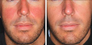 VASCULAR LESIONS man patient before and after photo