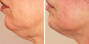 WRINKLED/SAGGING SKIN REDUCTION patient before and after photo
