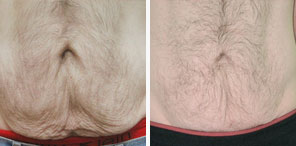 EXCESS LOOSE SKIN/SKIN TIGHTENING another patient before and after photo